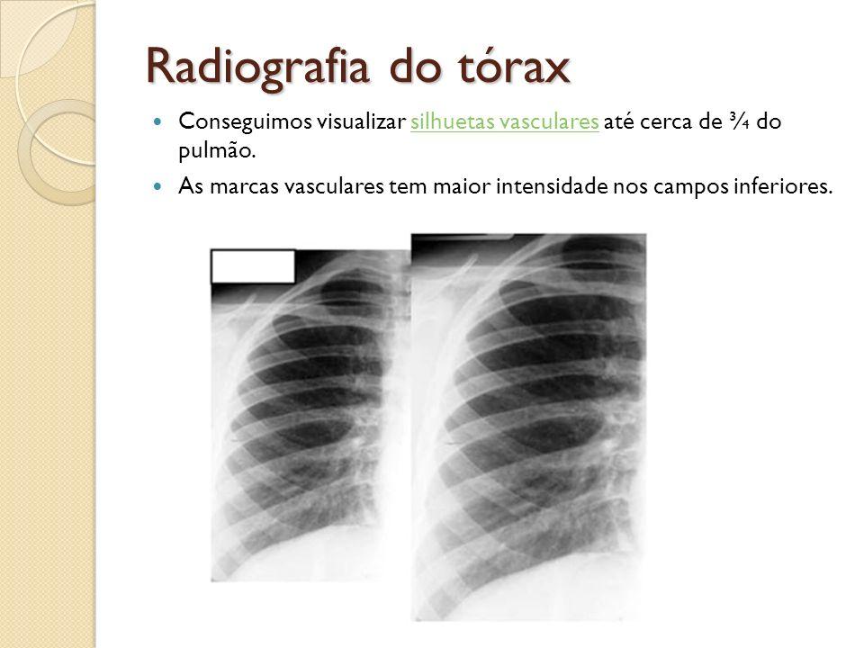 Radiografia do tórax Conseguimos visualizar silhuetas vasculares até cerca de ¾ do pulmão.