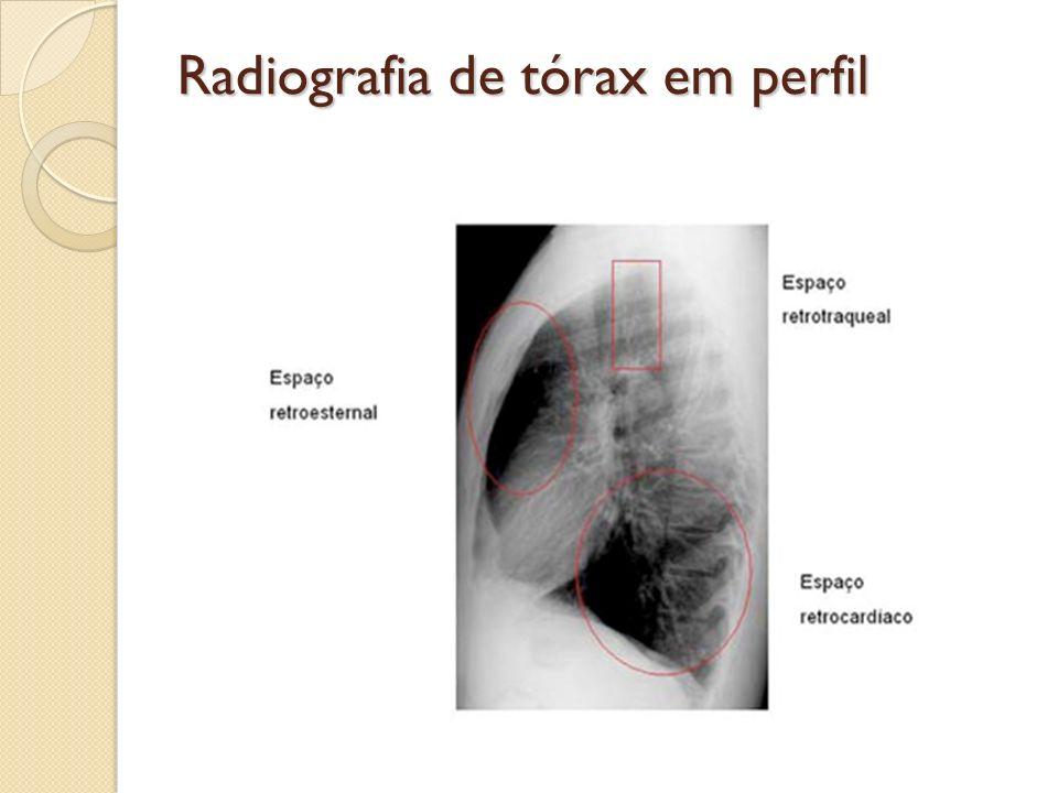Radiografia de tórax em perfil