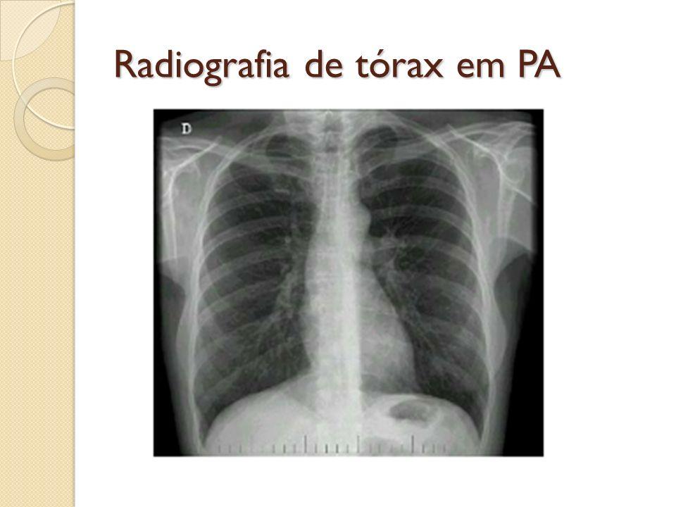 Radiografia de tórax em PA