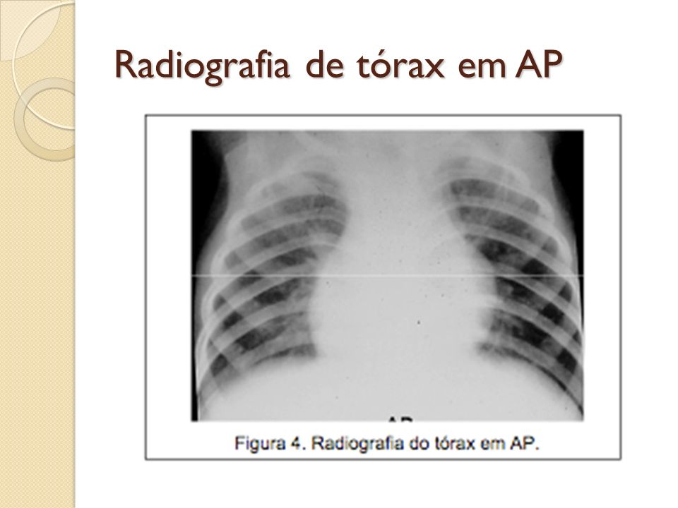 Radiografia de tórax em AP