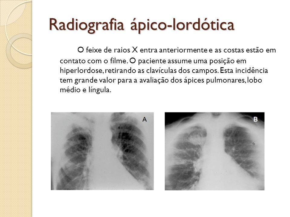 Radiografia ápico-lordótica