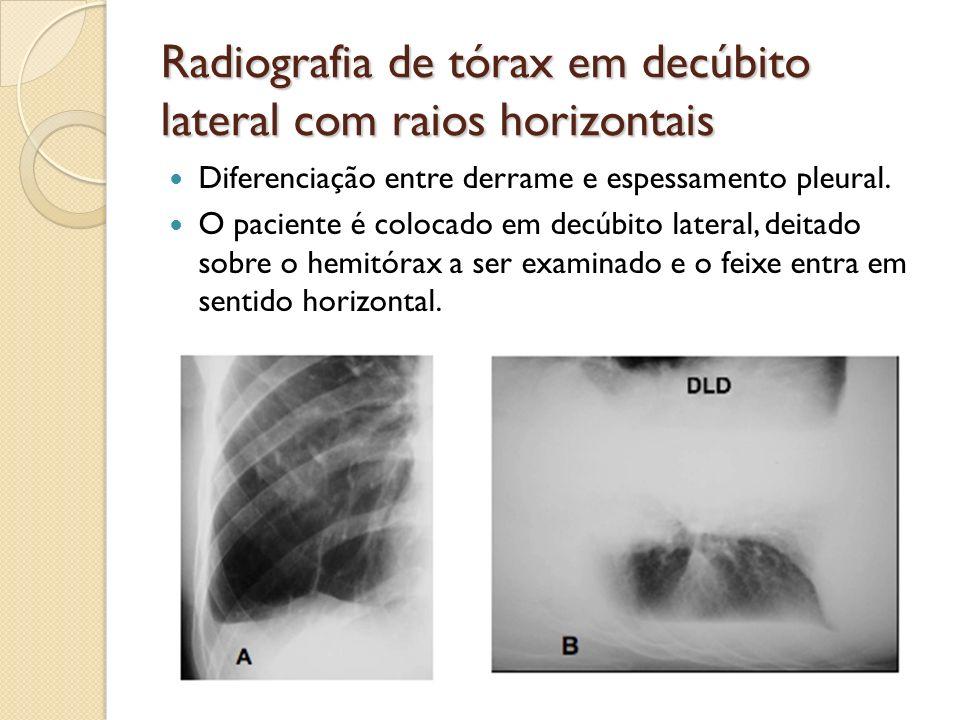 Radiografia de tórax em decúbito lateral com raios horizontais