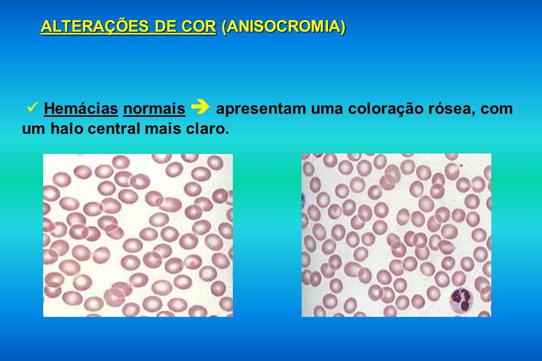 ALTERAÇÕES DE COR (ANISOCROMIA)