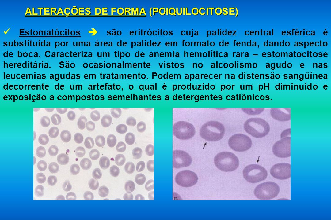 ALTERAÇÕES DE FORMA (POIQUILOCITOSE)