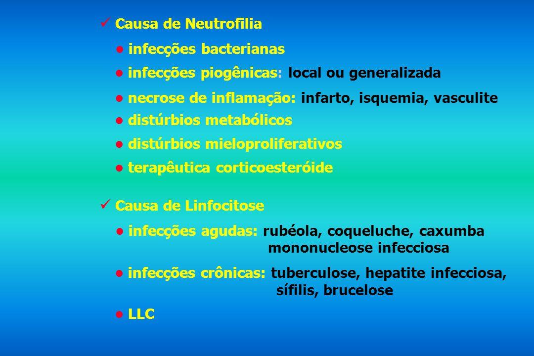  Causa de Neutrofilia• infecções bacterianas. • infecções piogênicas: local ou generalizada. • necrose de inflamação: infarto, isquemia, vasculite.