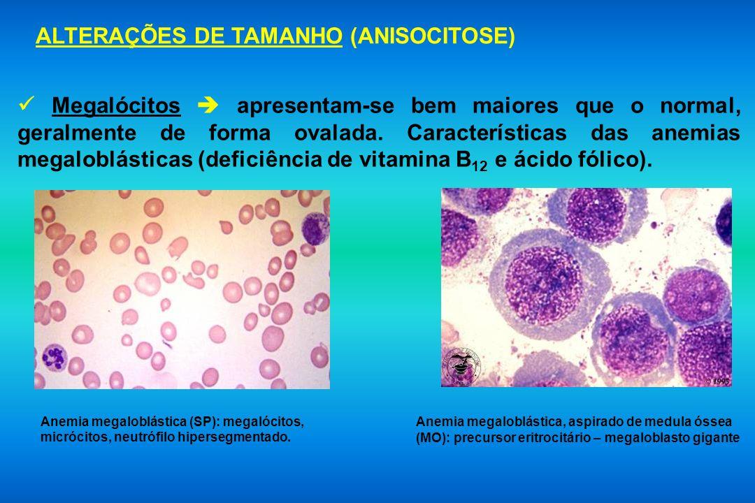 ALTERAÇÕES DE TAMANHO (ANISOCITOSE)