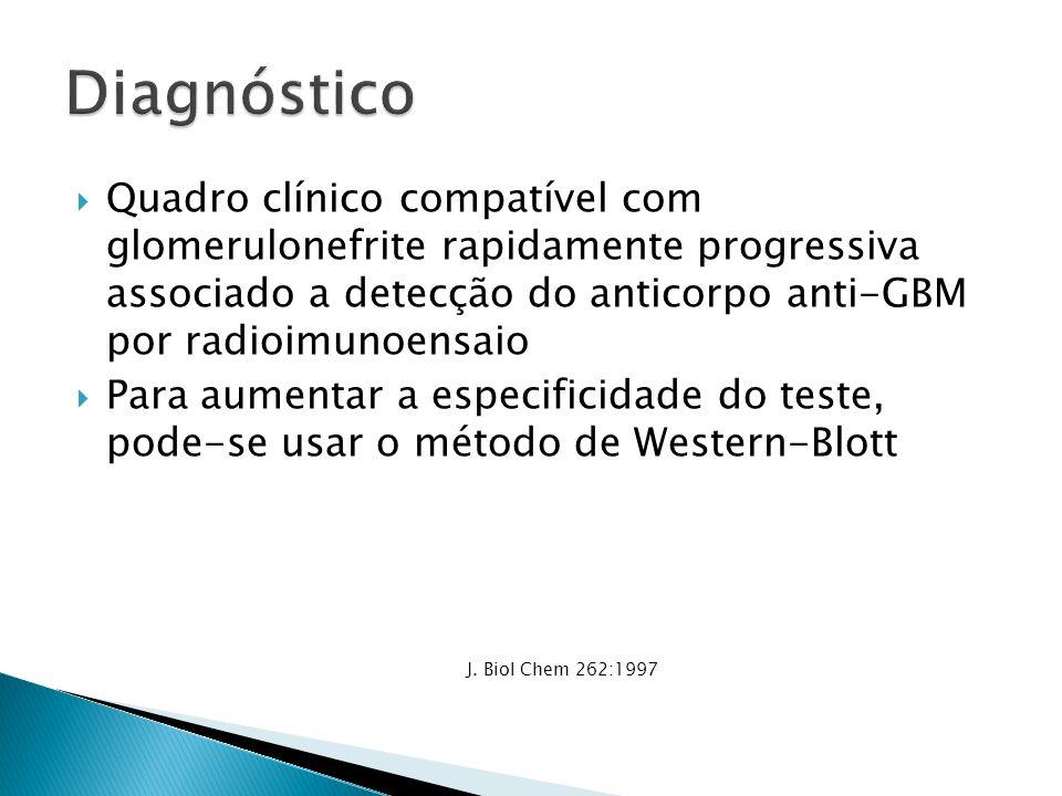 Diagnóstico Quadro clínico compatível com glomerulonefrite rapidamente progressiva associado a detecção do anticorpo anti-GBM por radioimunoensaio.