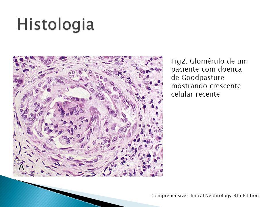 Histologia Fig2. Glomérulo de um paciente com doença de Goodpasture mostrando crescente celular recente.