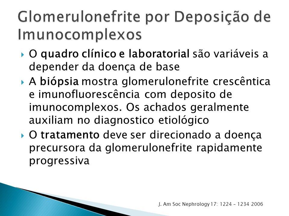 Glomerulonefrite por Deposição de Imunocomplexos