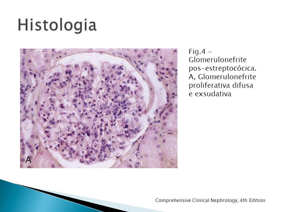 Histologia Fig.4 - Glomerulonefrite pos-estreptocócica. A, Glomerulonefrite proliferativa difusa e exsudativa.