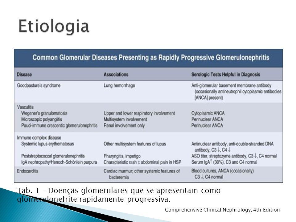 Etiologia Tab. 1 – Doenças glomerulares que se apresentam como glomerulonefrite rapidamente progressiva.