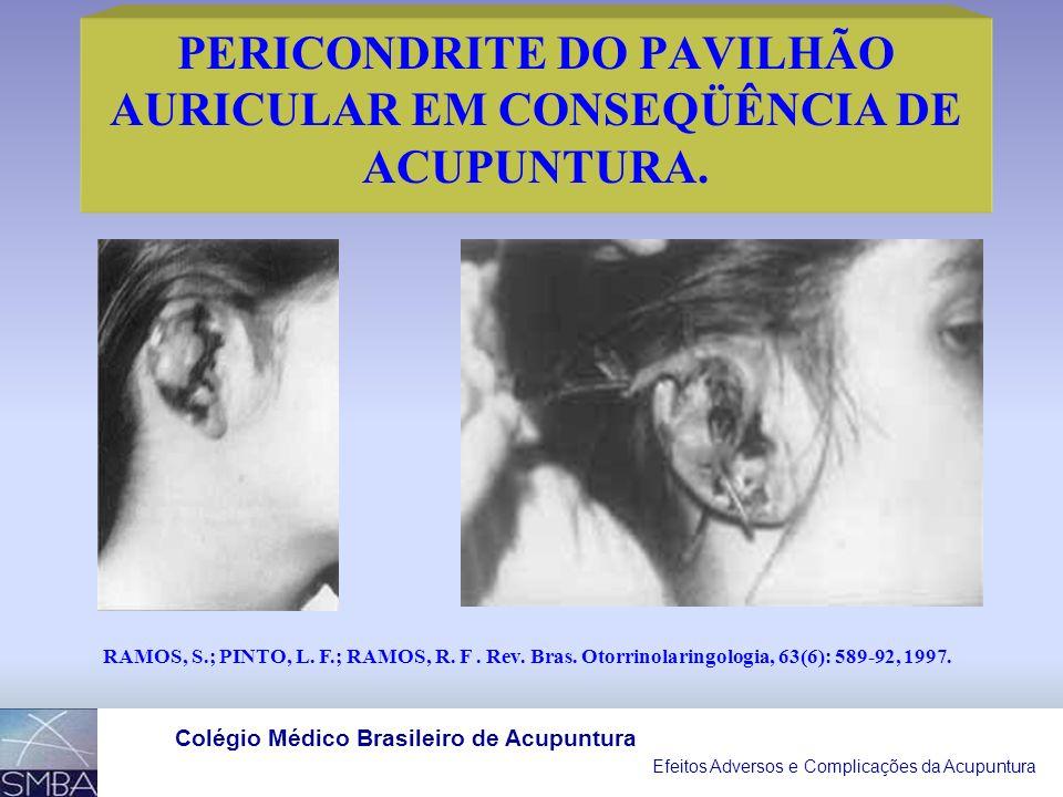 PERICONDRITE DO PAVILHÃO AURICULAR EM CONSEQÜÊNCIA DE ACUPUNTURA.
