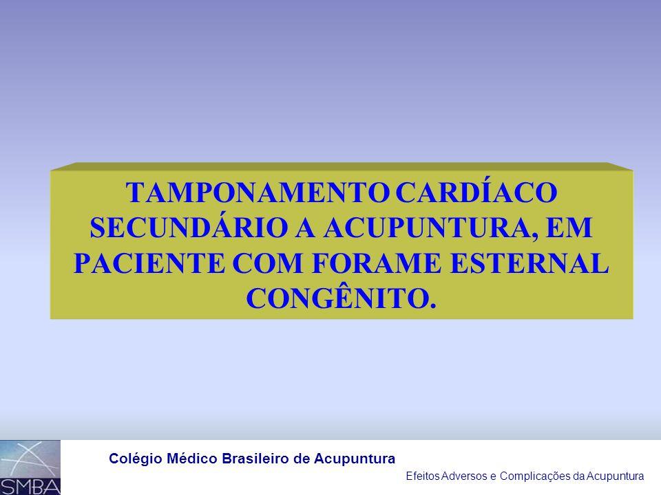TAMPONAMENTO CARDÍACO SECUNDÁRIO A ACUPUNTURA, EM PACIENTE COM FORAME ESTERNAL CONGÊNITO.