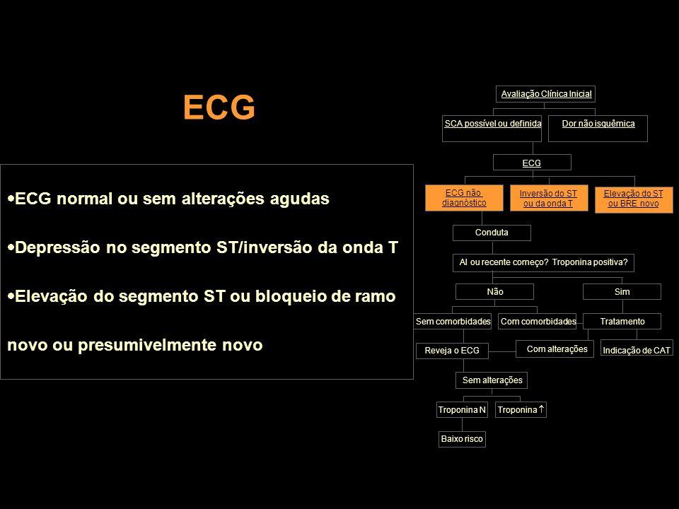 ECG ECG normal ou sem alterações agudas