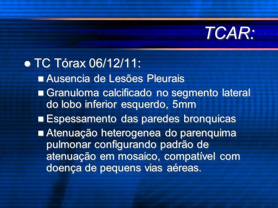 TCAR: TC Tórax 06/12/11: Ausencia de Lesões Pleurais