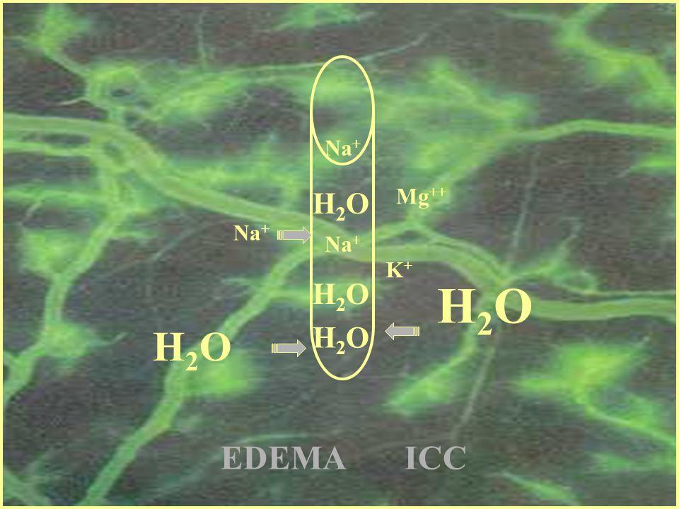Na+ H2O Mg++ Na+ Na+ K+ H2O H2O H2O H2O EDEMA ICC