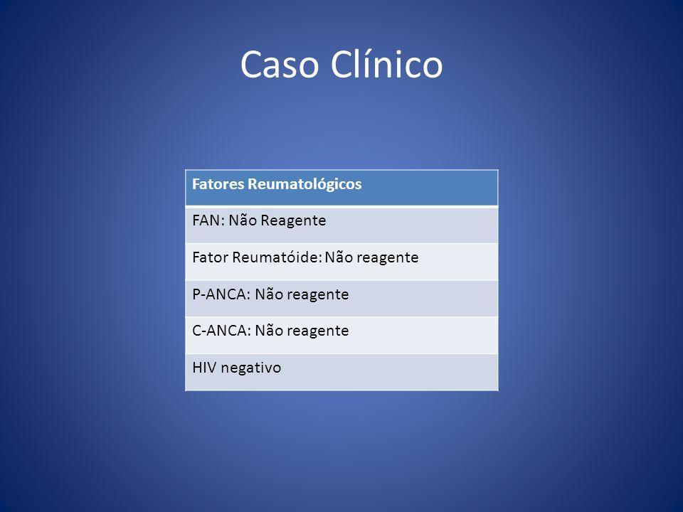 Caso Clínico Fatores Reumatológicos FAN: Não Reagente