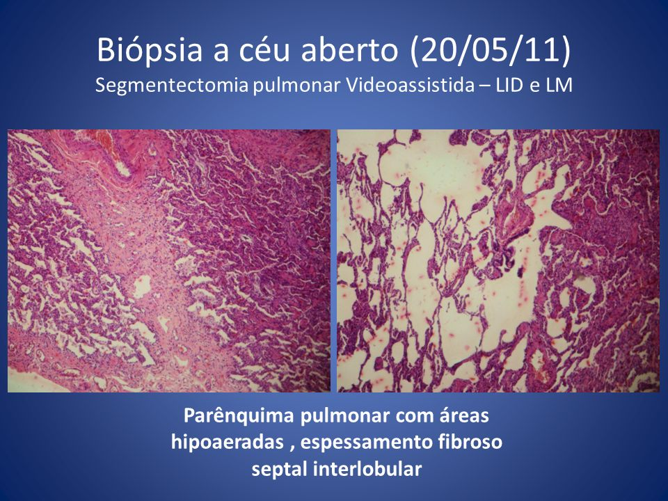 Biópsia a céu aberto (20/05/11) Segmentectomia pulmonar Videoassistida – LID e LM
