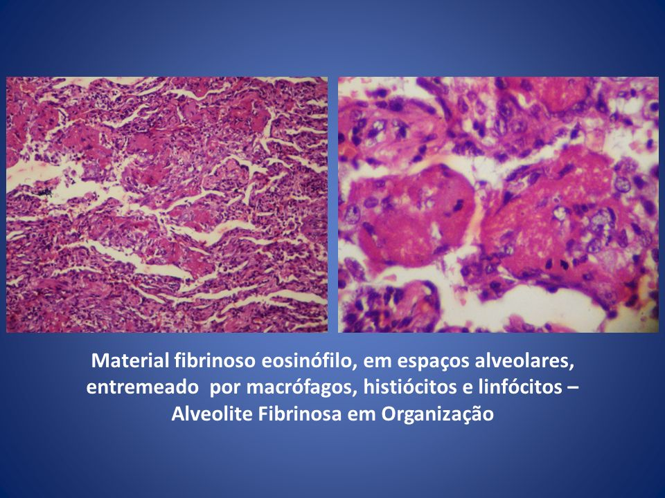 Material fibrinoso eosinófilo, em espaços alveolares, entremeado por macrófagos, histiócitos e linfócitos – Alveolite Fibrinosa em Organização