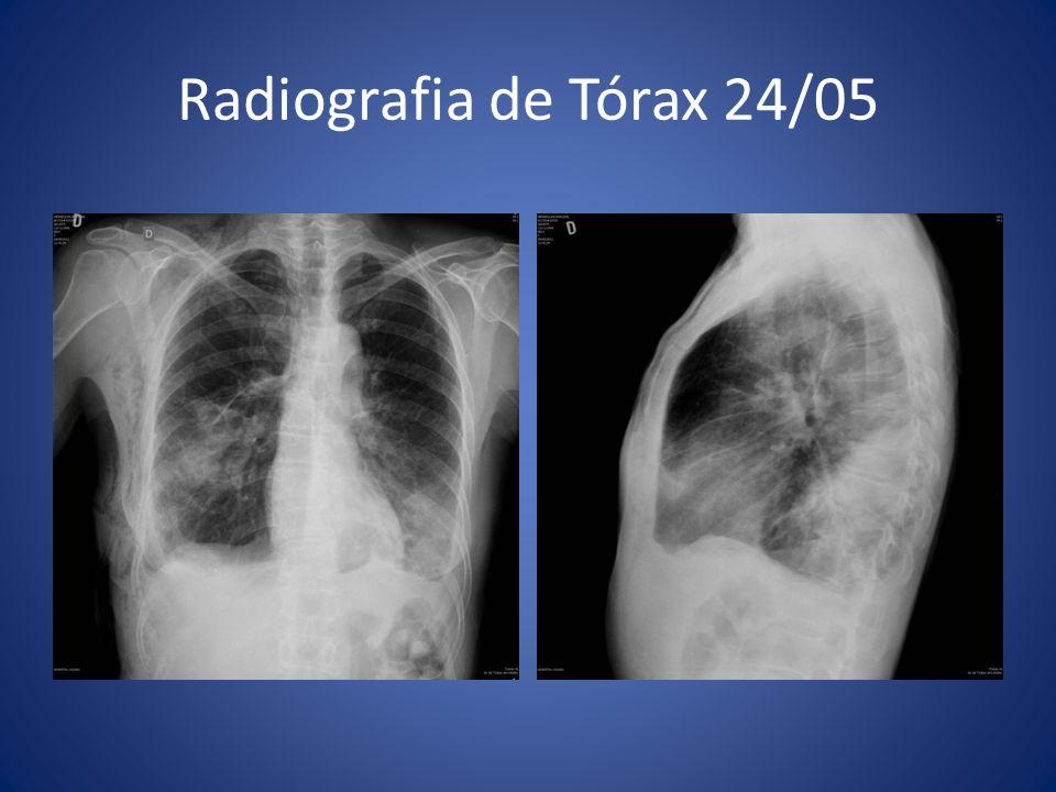 Radiografia de Tórax 24/05