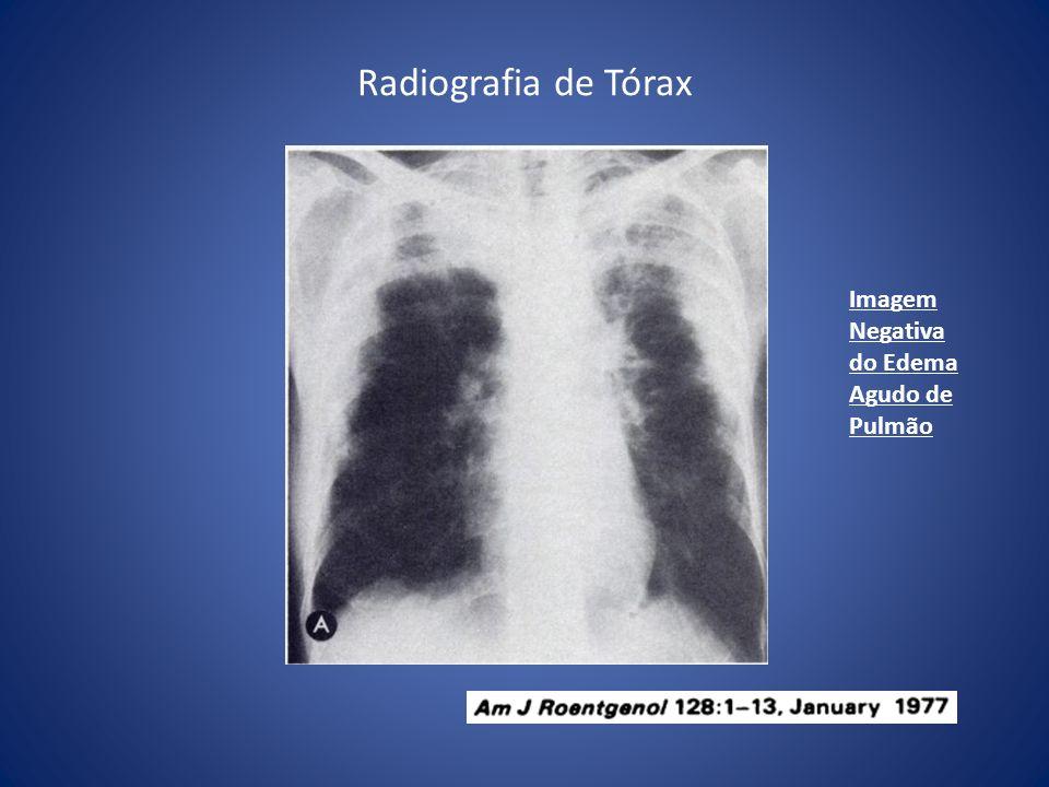 Radiografia de Tórax Imagem Negativa do Edema Agudo de Pulmão