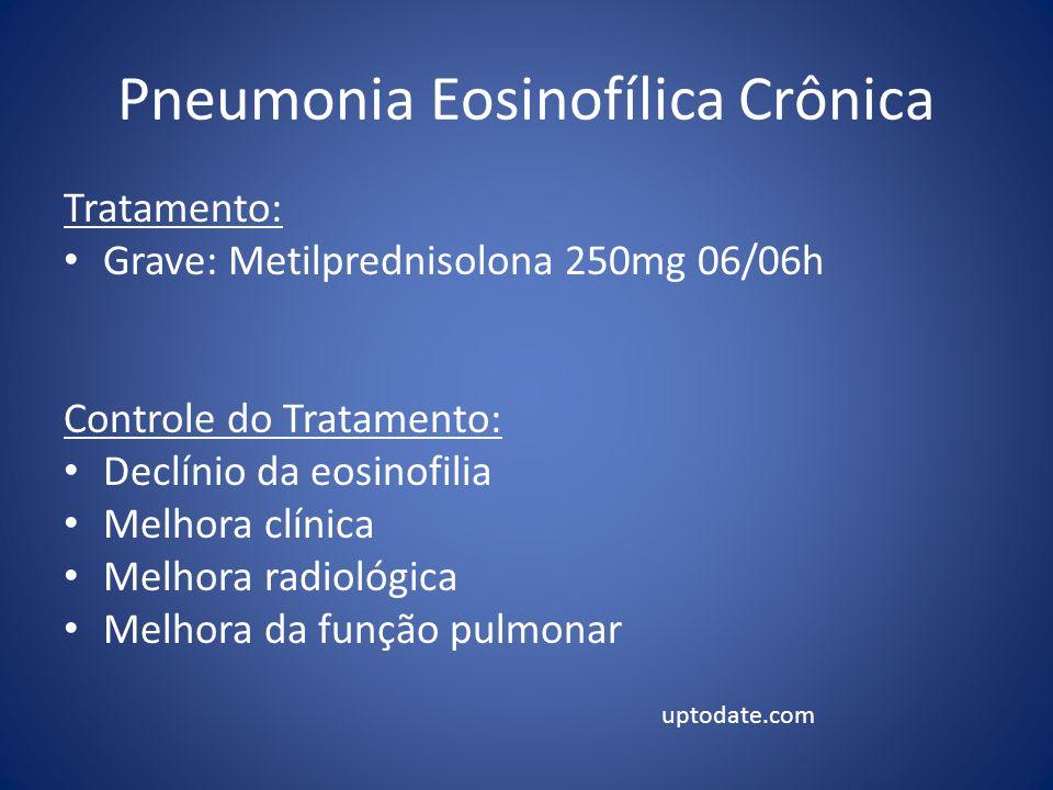 Pneumonia Eosinofílica Crônica