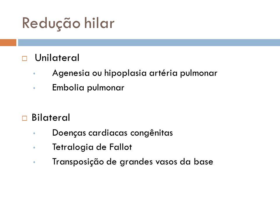 Redução hilar Unilateral Bilateral
