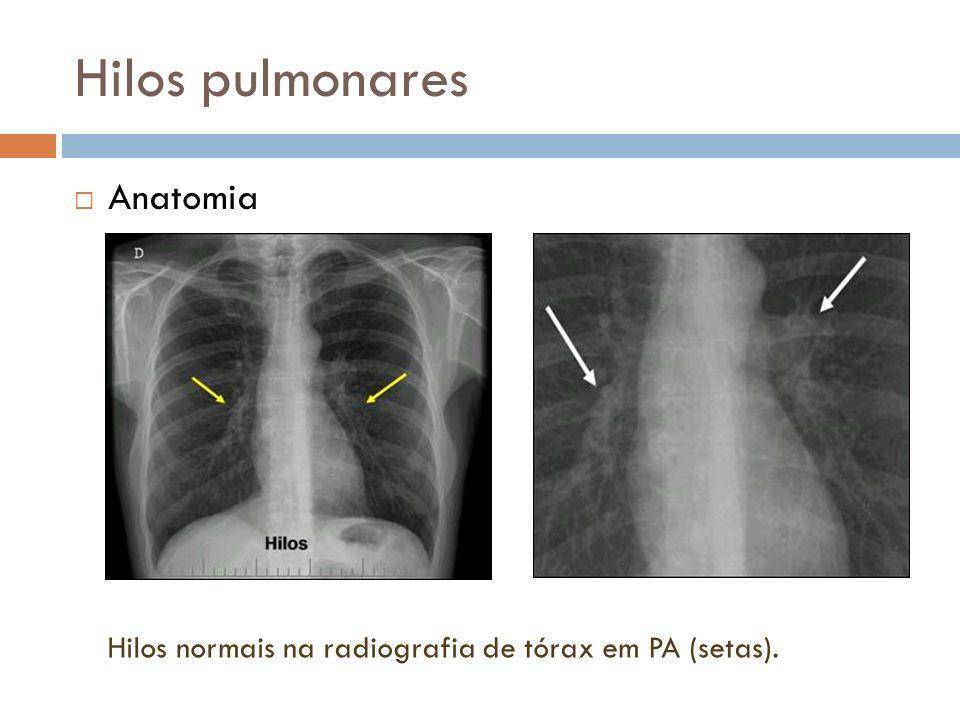 Hilos pulmonares Anatomia