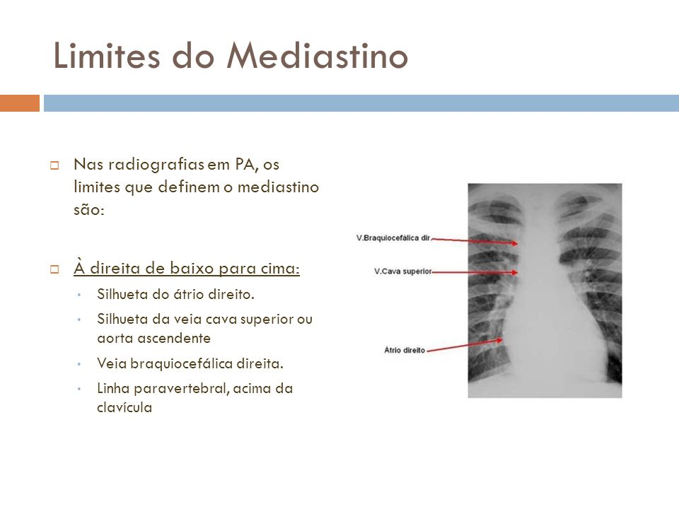 Limites do MediastinoNas radiografias em PA, os limites que definem o mediastino são: À direita de baixo para cima:
