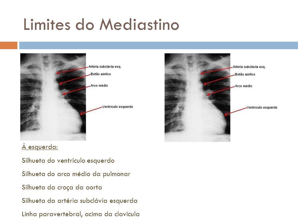 Limites do Mediastino À esquerda: Silhueta do ventrículo esquerdo