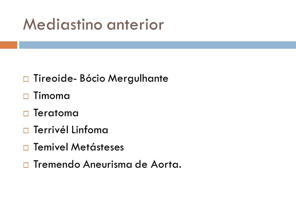 Mediastino anterior Tireoide- Bócio Mergulhante Timoma Teratoma
