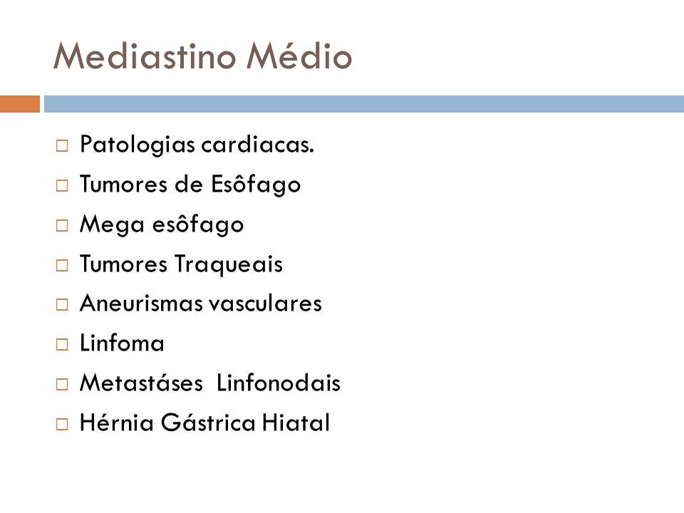 Mediastino Médio Patologias cardiacas. Tumores de Esôfago Mega esôfago