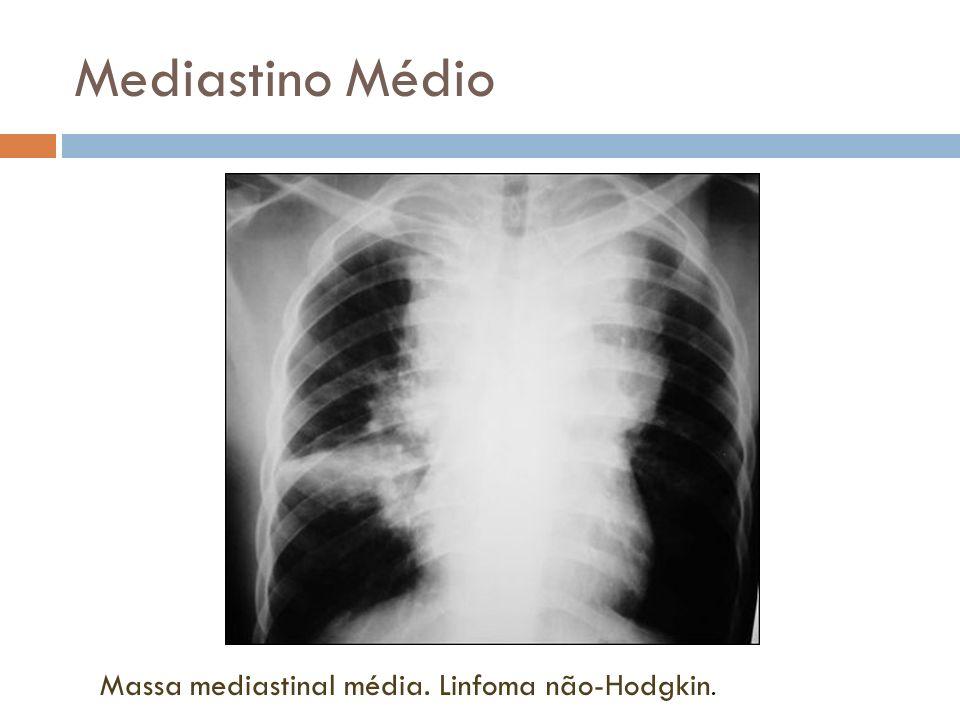 Mediastino Médio Massa mediastinal média. Linfoma não-Hodgkin.