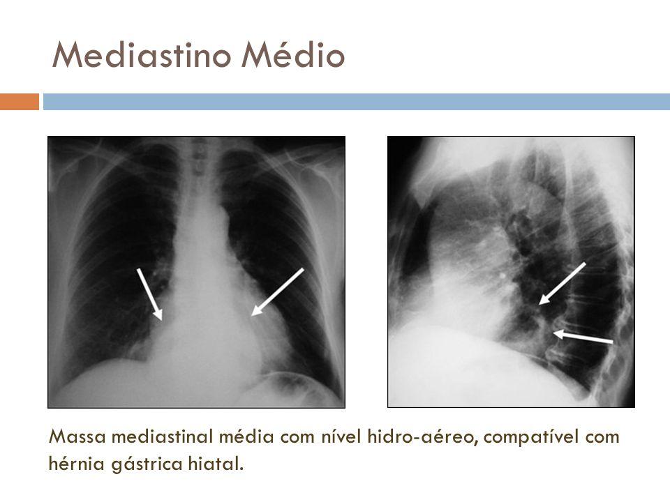 Mediastino MédioMassa mediastinal média com nível hidro-aéreo, compatível com hérnia gástrica hiatal.