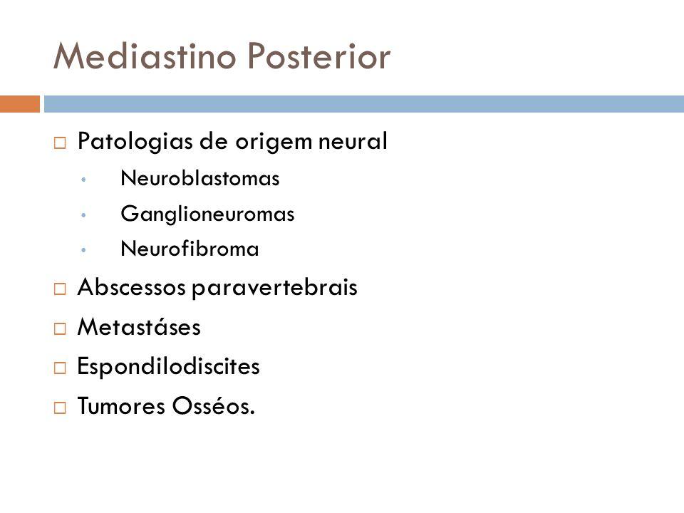 Mediastino Posterior Patologias de origem neural