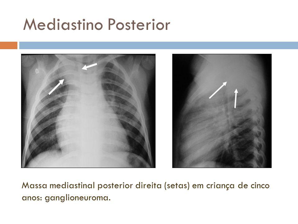 Mediastino Posterior Massa mediastinal posterior direita (setas) em criança de cinco anos: ganglioneuroma.