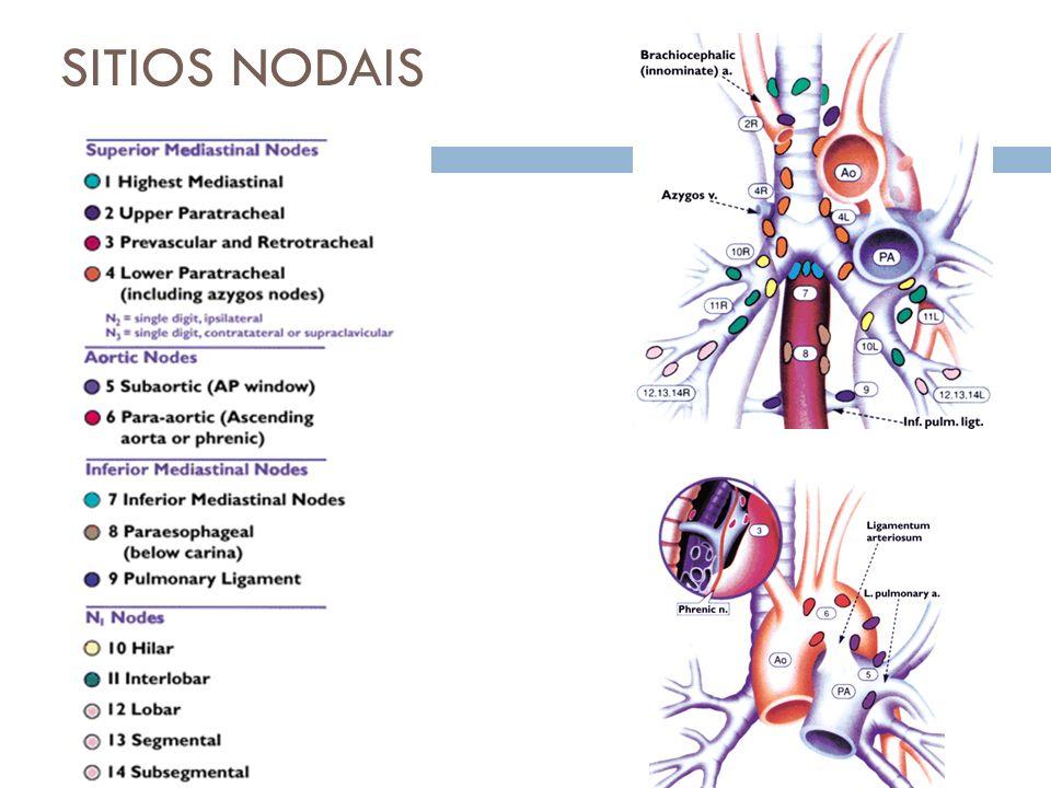 SITIOS NODAIS