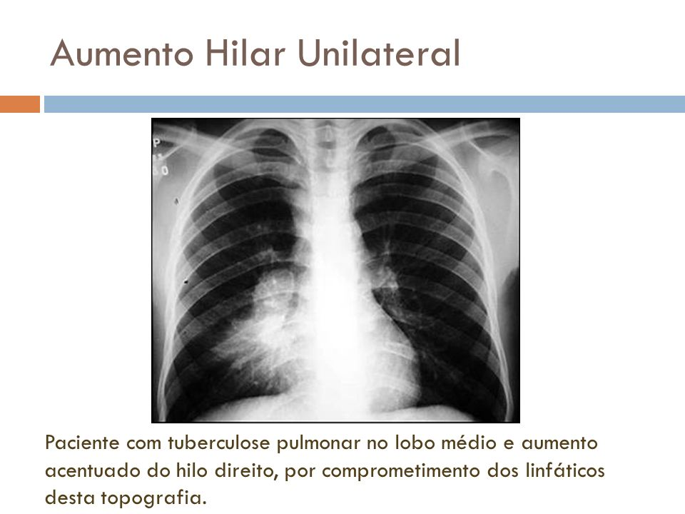Aumento Hilar Unilateral