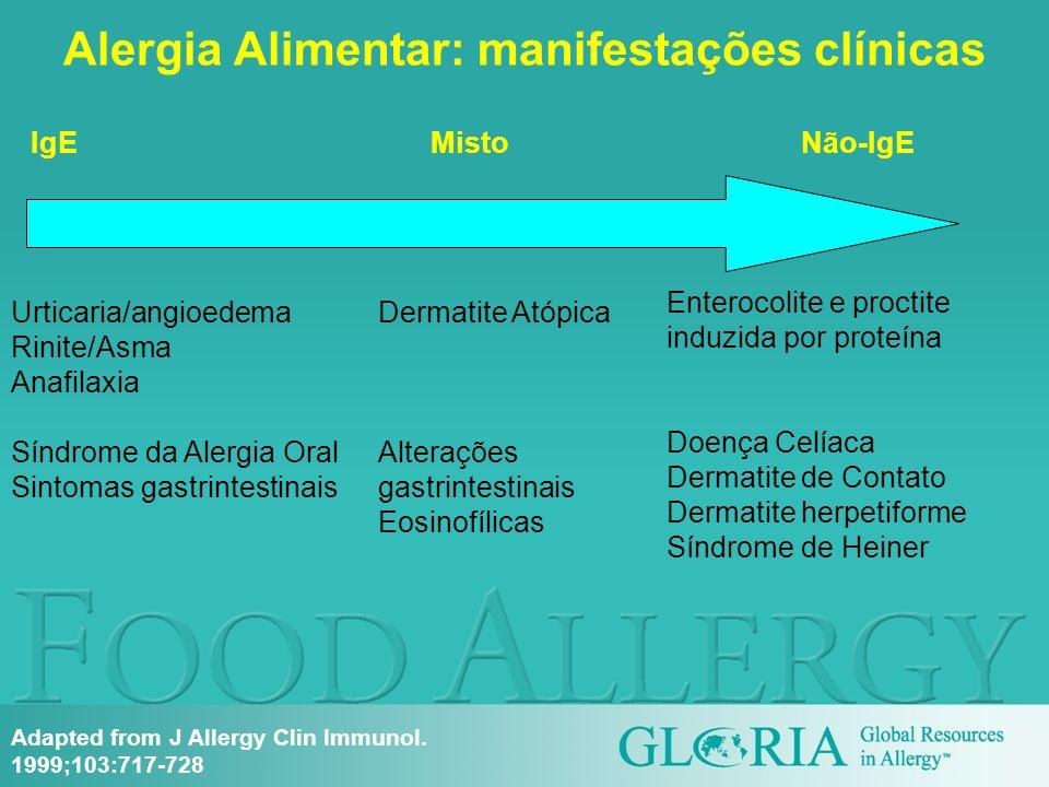 Alergia Alimentar: manifestações clínicas