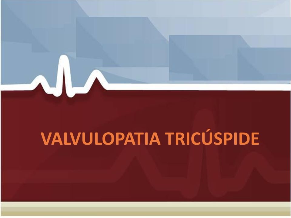 VALVULOPATIA TRICÚSPIDE