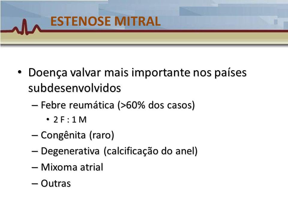 ESTENOSE MITRAL Doença valvar mais importante nos países subdesenvolvidos. Febre reumática (>60% dos casos)