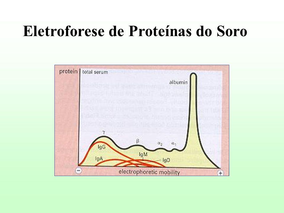 Eletroforese de Proteínas do Soro