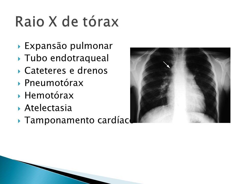 Raio X de tórax Expansão pulmonar Tubo endotraqueal Cateteres e drenos