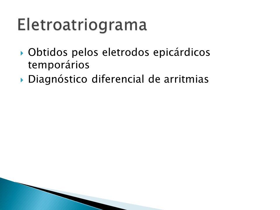 Eletroatriograma Obtidos pelos eletrodos epicárdicos temporários