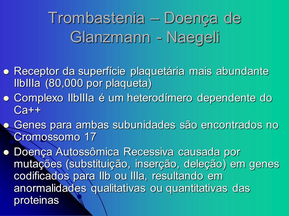 Trombastenia – Doença de Glanzmann - Naegeli