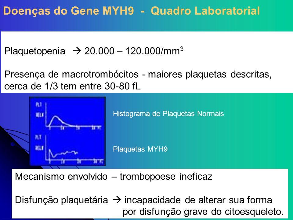 Doenças do Gene MYH9 - Quadro Laboratorial
