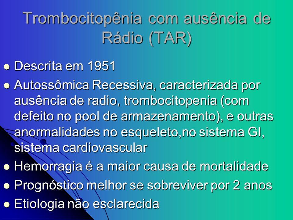 Trombocitopênia com ausência de Rádio (TAR)
