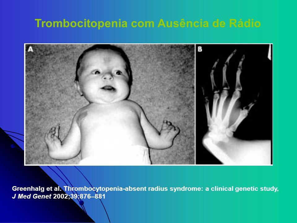 Trombocitopenia com Ausência de Rádio