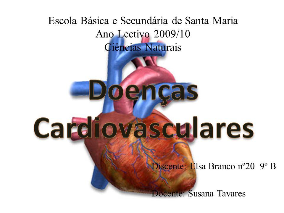 Discente: Elsa Branco nº20 9º B Docente: Susana Tavares