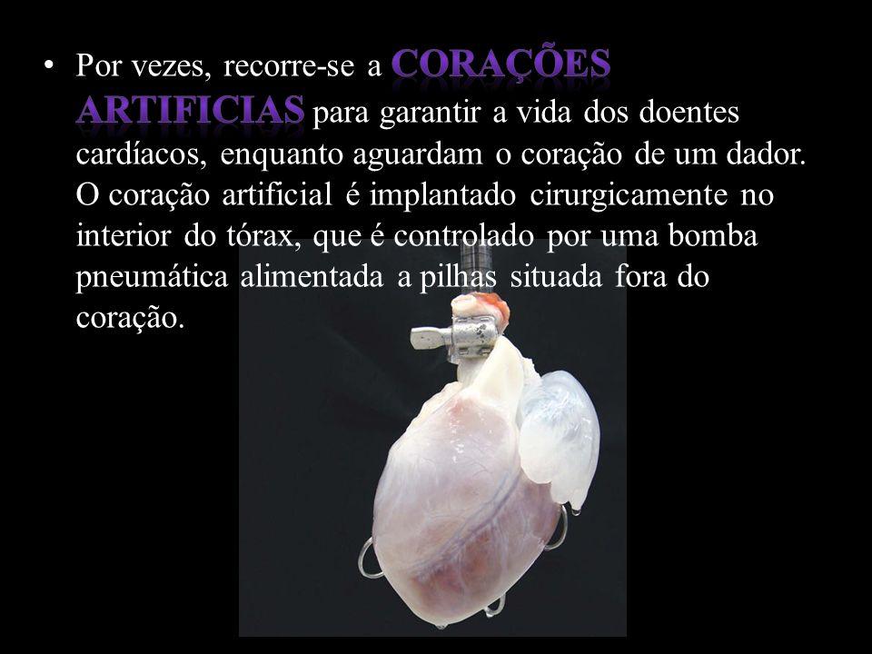 Por vezes, recorre-se a corações artificias para garantir a vida dos doentes cardíacos, enquanto aguardam o coração de um dador.